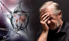 Reduce the risk of Alzheimer