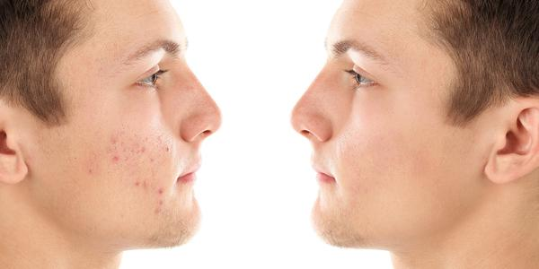 cause of blemishes and dark spots