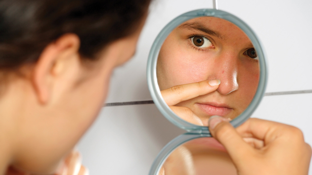 How to treat blemishes